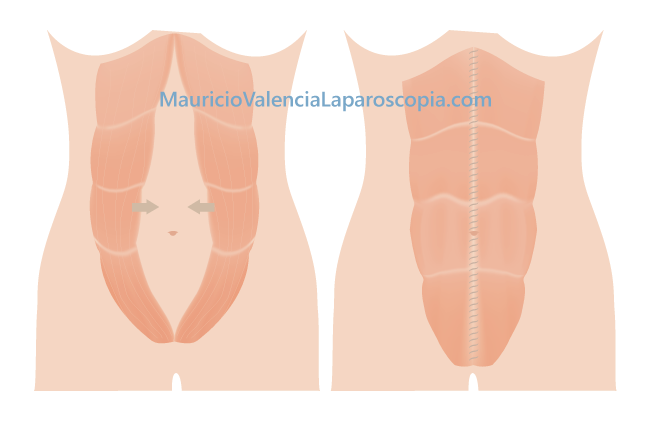 Diastasis de rectos abdominales